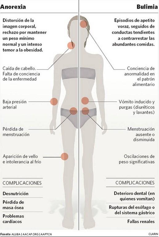 Anorexia-bulimia_CLAIMA20101126_0085_22.jpg