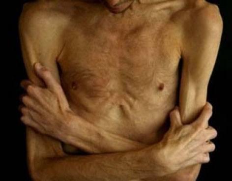 anorexia_hombres