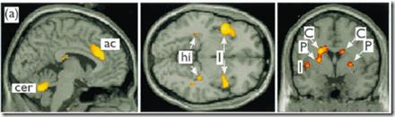 cerebro enamorado
