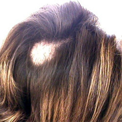 trichotillomania_full